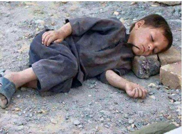 yemeni-children-are-sleeping-in-the-streets-stopped-the-war
